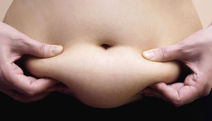 अब बिना सर्जरी पाएं मोटापे से छुटकारा और घटाएं वजन!