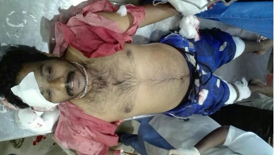 केरल में फिर से RSS कार्यकर्ता पर हमला, हालत नाजुक