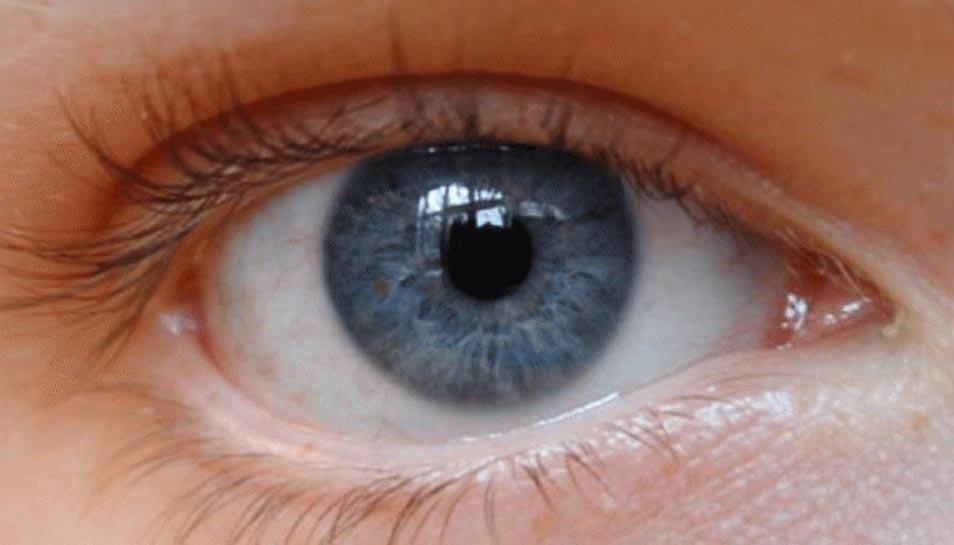 अमेरिका: दुनिया की पहली इंसान, जिसकी आंखों से डॉक्टरों ने निकाले 14 कीड़े