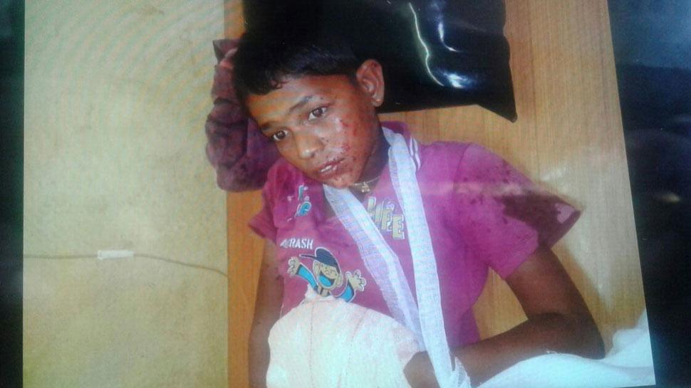 महाराष्ट्र: मोबाइल से खेलना पड़ा भारी, बैटरी में ब्लास्ट से 10 साल के बच्चे की उंगलियां फटीं
