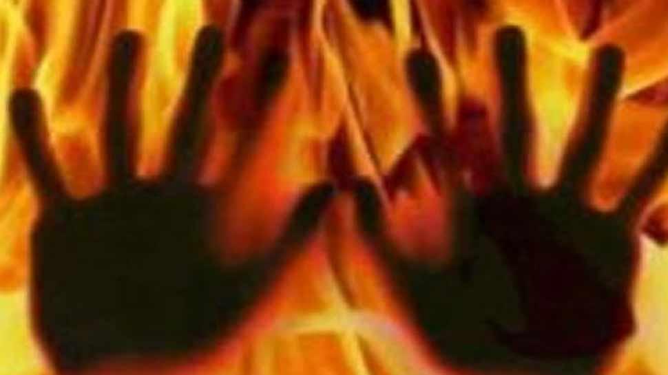 अलीगढ़: रेप का विरोध करने पर युवती को जिंदा जलाने की कोशिश, हालत गंभीर