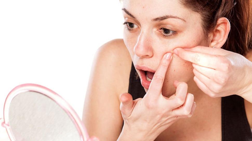 चेहरे पर मुंहासों और बाल होने से महिलाओं में बढ़ जाता है तनाव का खतरा