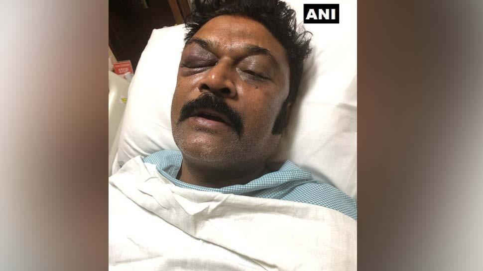 कांग्रेस विधायकों में मारपीट के बाद सामने आई घायल MLA की तस्वीर, गणेश के खिलाफ FIR