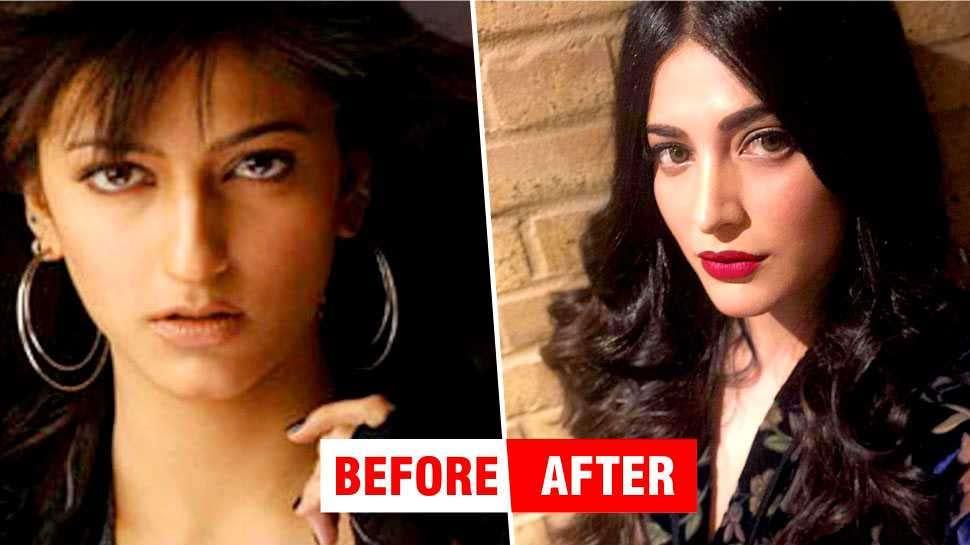 PHOTOS : फिल्मों में आने से पहले ऐसी दिखती थीं श्रुति हसन, सर्जरी ने बदली किस्मत