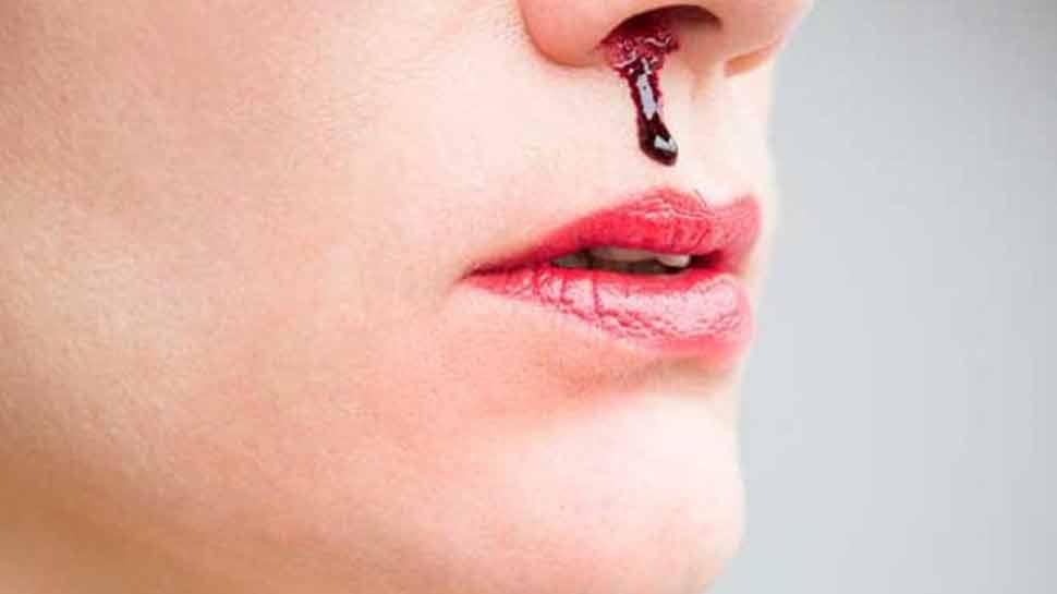 फ्लाइट में यात्रियों की नाक से बहने लगा खून, स्टॉफ के हाथ-पांव फूले