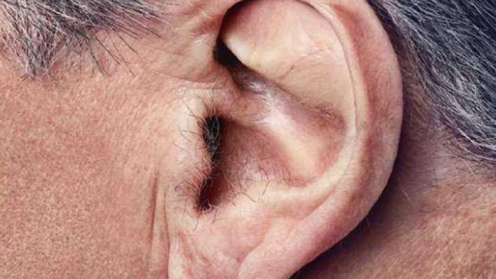 Video: कान में खुजली से परेशान था युवक, डॉक्टर से कराई जांच, तो रेंगती मिली मकड़ी