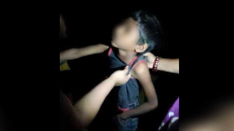 असम: लीची चोरी के आरोप में 5 लोगों ने 8 वर्षीय बच्चे को बेरहमी से पीटा