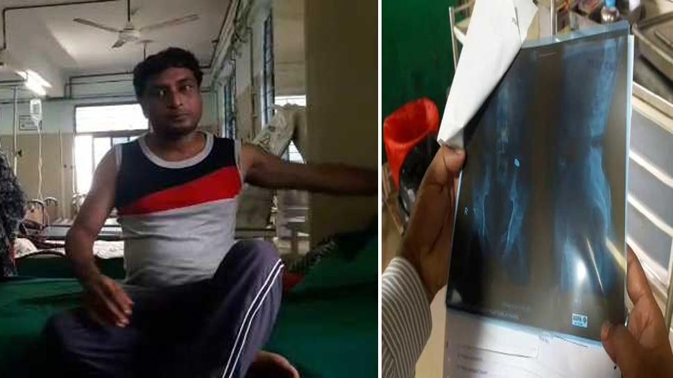 पश्चिम बंगाल : पुलिस से बचने के लिए व्यक्ति ने निगल ली बुलेट, हालत बिगड़ी
