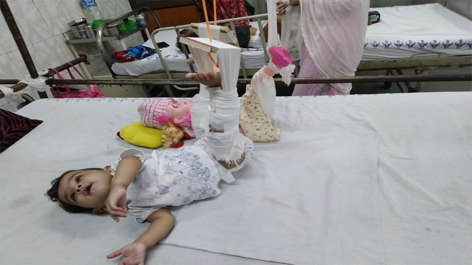 Doctors first plaster the doll