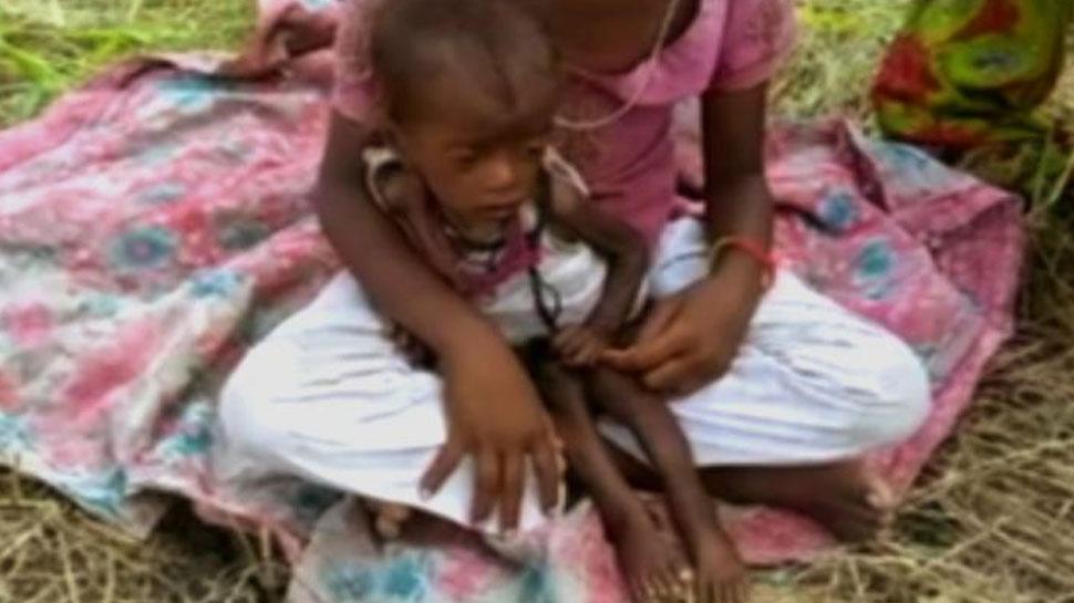 राजस्थान: भ्रष्टाचार की भेंट चढ़ा पोषण का आहार, बच्चे हो रहे कुपोषण का शिकार