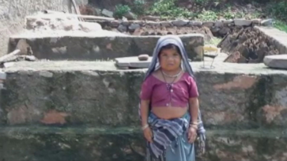 उदयपुर: बेसहारा महिला को सरकार की मदद की दरकार, दर दर की ठोकरें खाने को है मजबूर