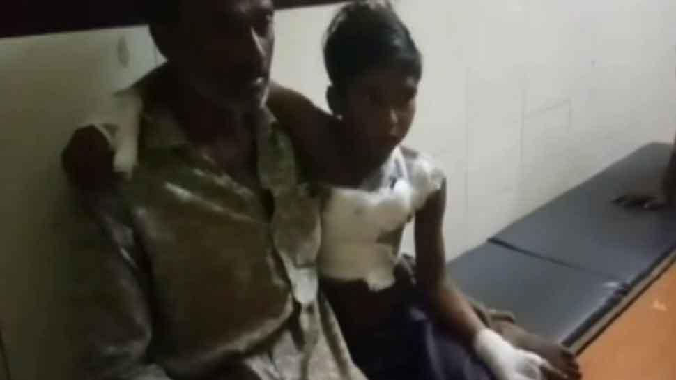 MP: चार्जिंग पर लगाते ही मोबाइल हो गया ब्लास्ट, दो बच्चे गंभीर रूप से घायल