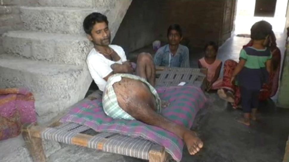 दुखदायी जिंदगी: हाथी सा हुआ पांव, बेटे को स्कूल छोड़ करनी पड़ रही मजदूरी