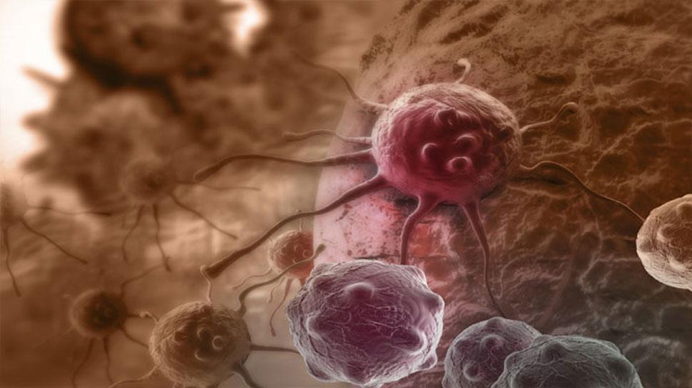 हल्दी और कैंसर की लड़ाई में...हल्दी की जीत क्यों तय है?