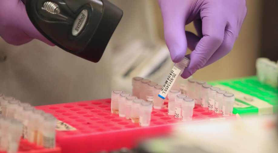 कोरोना: इस देश ने पहली वैक्सीन तैयार करने का किया दावा, मनुष्यों पर ट्रायल रहा सफल