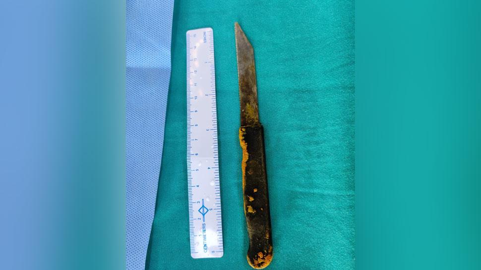 नशे में शख्स निगल गया चाकू, AIIMS के डॉक्टरों ने सर्जरी कर Liver से बाहर निकाला