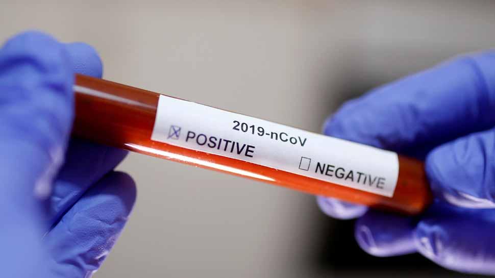 बिहार में कोरोना संक्रमितों की संख्या 50 हजार पार, मिले 2986 नए मरीज