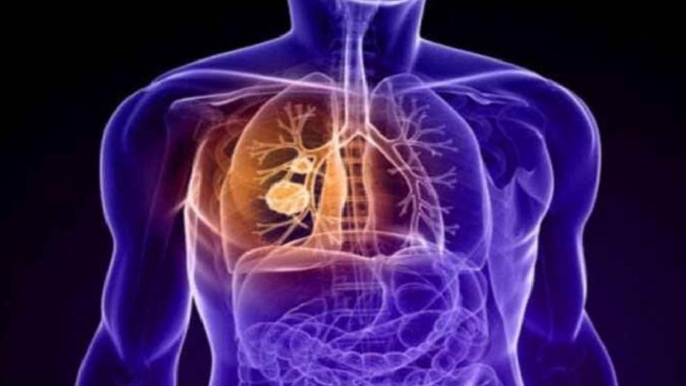 कोरोना से फेफड़े-दिल को हो रहा नुकसान, लंबे समय तक झेलनी पड़ती हैं परेशानियां