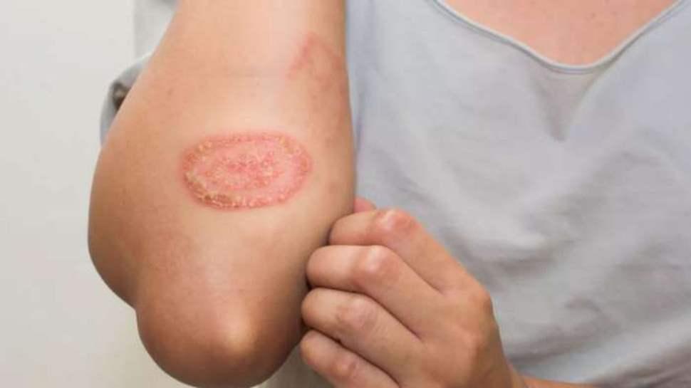 Eczema: इन 5 कारणों से ट्रिगर हो सकती है स्किन इंफेक्शन की ये बीमारी, जानें कैसे करें बचाव