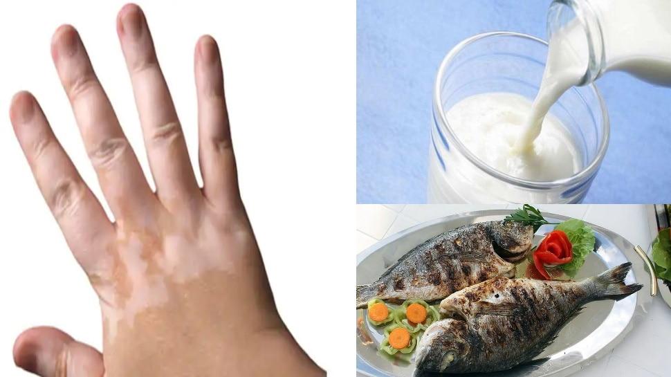 क्या मछली खाकर दूध पीने से होता है सफेद दाग? जानें इस स्किन डिजीज का कारण और इससे बचने के उपाय