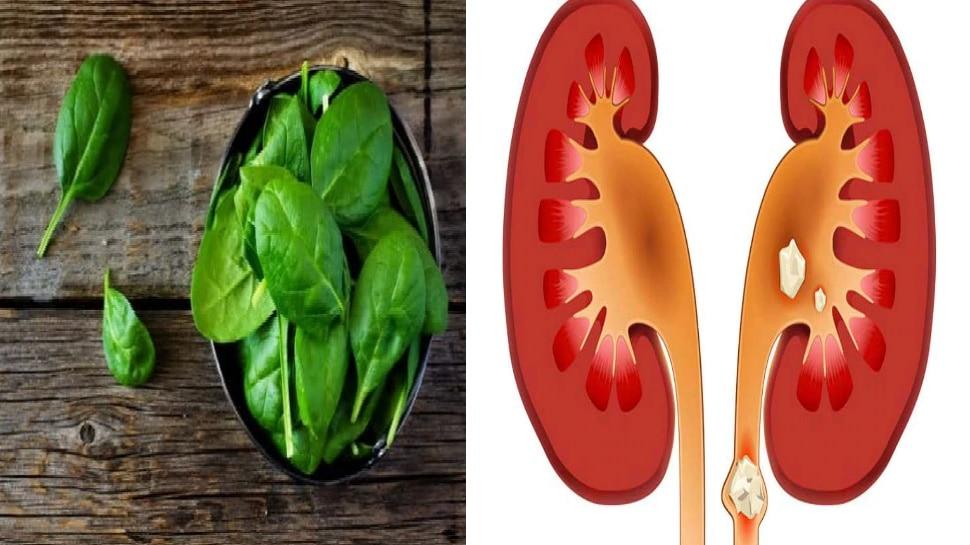 Kidney Stone की समस्या है तो ये चीजें भूल से भी न खाएं