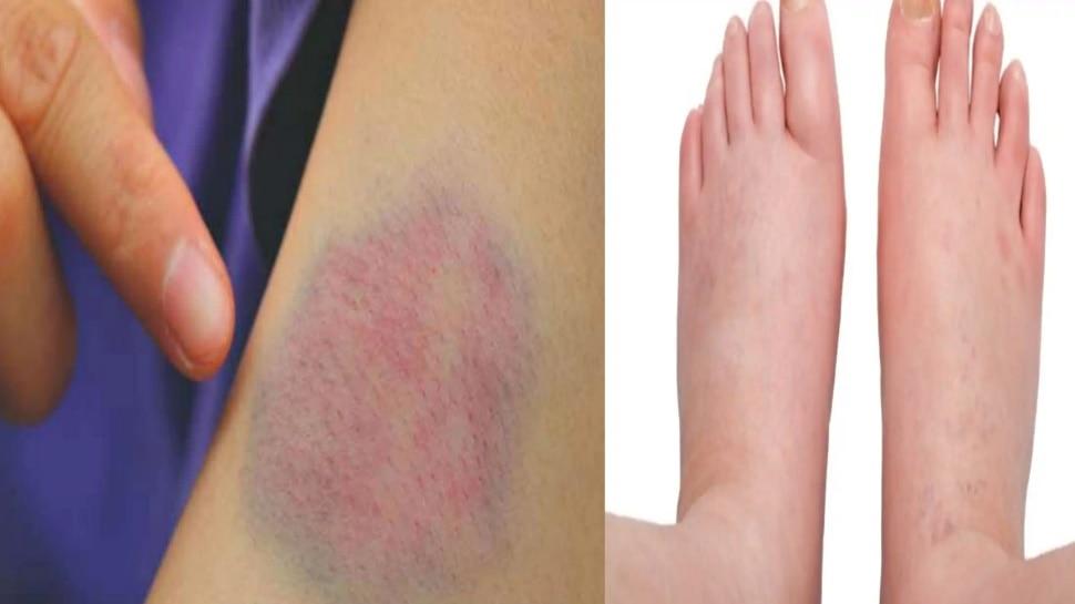 Blood Clot Signs: त्वचा के रंग में बदलाव से लेकर सूजन तक, ब्लड क्लॉट के इन संकेतों को नजरअंदाज न करें