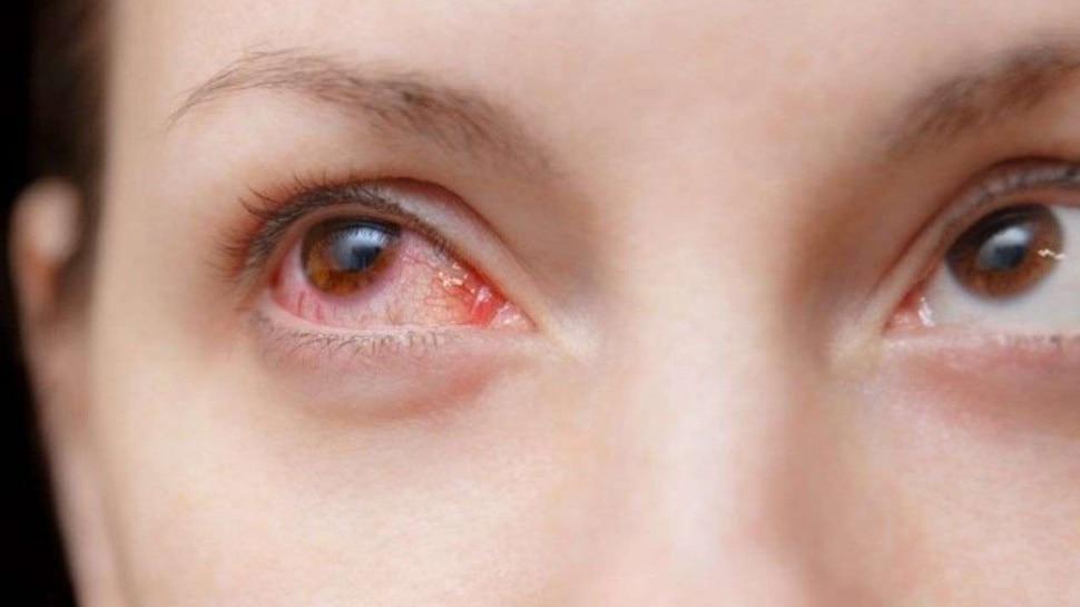coronavirus symptoms red eyes