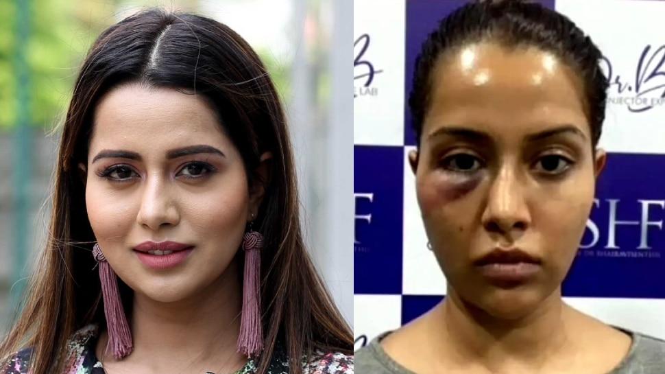 Tamil Actress Raiza Wilson को महंगा पड़ा फेशियल ट्रीटमेंट, चेहरे की हो गई बुरी हालत