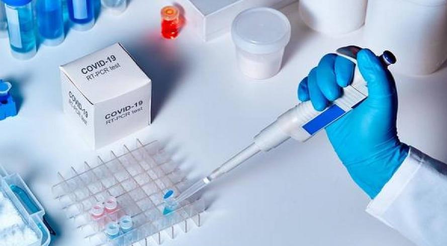 कोरोना के लक्षण होने पर भी RT-PCR टेस्ट आ रहा निगेटिव, तो जानिए क्या कदम उठाएं