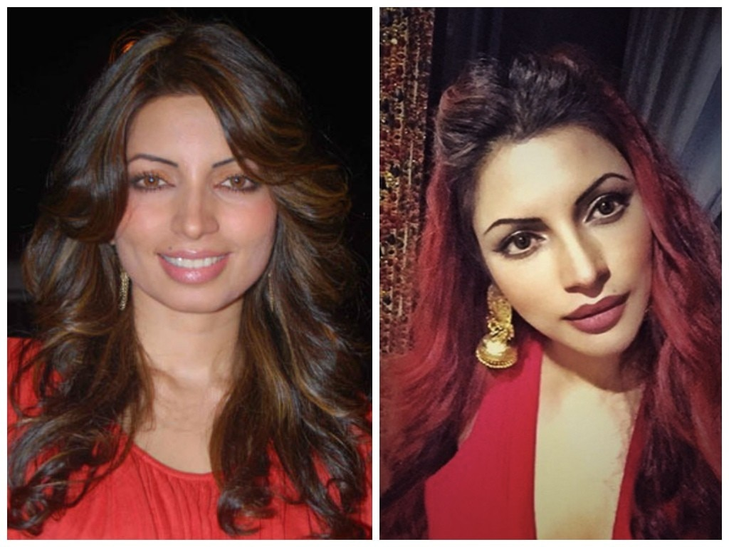 Shama Sikander before and after botox