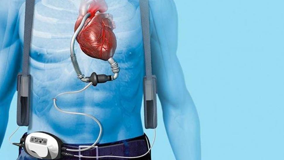 Heart image and cardiac screening