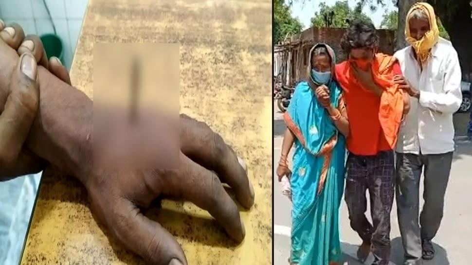 पुलिस पर आरोप, मास्क न पहनने पर युवक के हाथ-पैर में ठोक दी कील, जानिए मामला