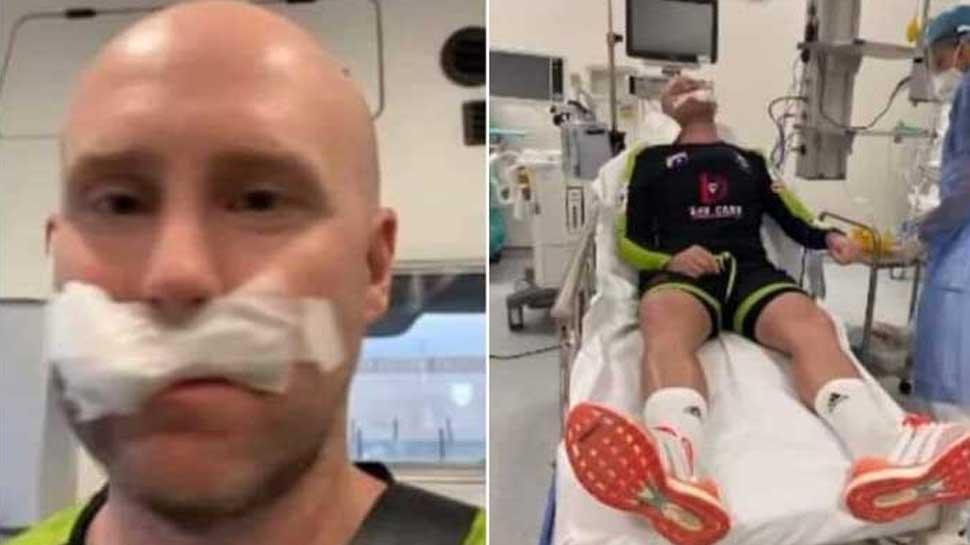 प्रैक्टिस के दौरान इस क्रिकेटर के चेहरे से टकराई तेज गेंद, मुंह से निकला खून, होठों पर लगे 7 टांके