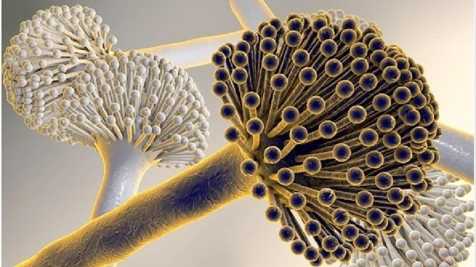अब Black Fungus के मरीजों में दिख रही है यह नई बीमारी, हो जाएं सतर्क