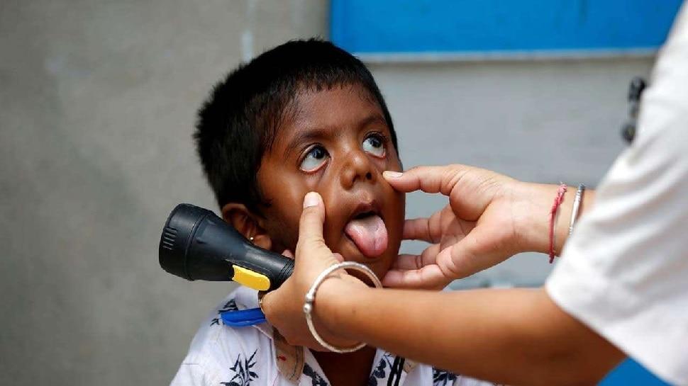 Mumbai में Black Fungus से संक्रमित 3 बच्चों की निकालनी पड़ीं आंखें, Covid-19 से उबरने के बाद हुई डायबिटीज