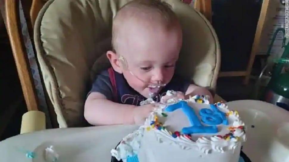 ये है World का सबसे Premature Baby, तमाम मुश्किलें पार करके मनाया पहला Birthday