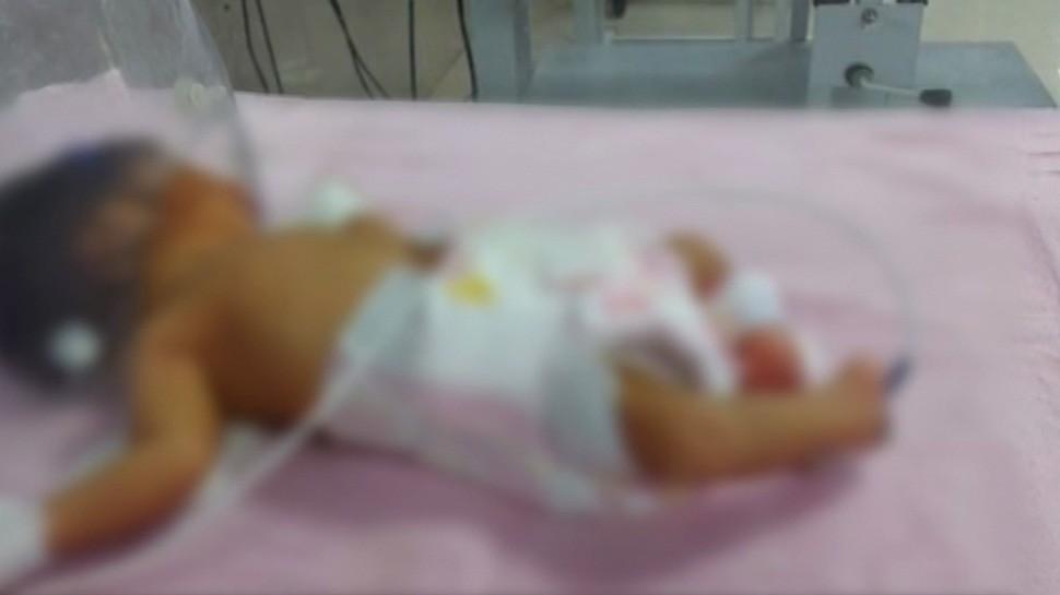 MP में जन्मी दुर्लभ बच्चीः पैरों का निचला हिस्सा है उल्टी ओर, हालत भी कमजोर, विशेषज्ञों ने बताई ये बात