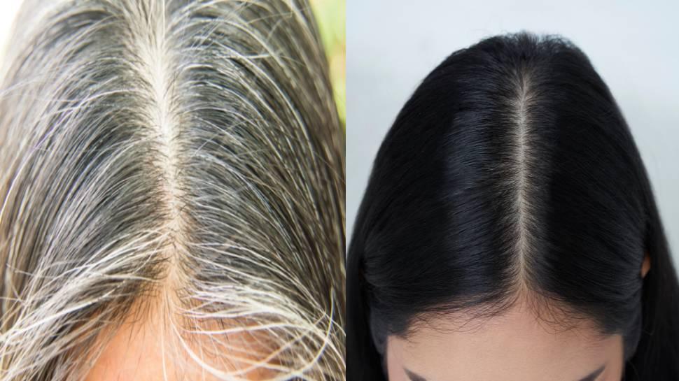 Homemade Hair Oil: सफेद बालों को जड़ से काला बनाने के अचूक घरेलू उपाय, घर पर ऐसे बनाएं तेल