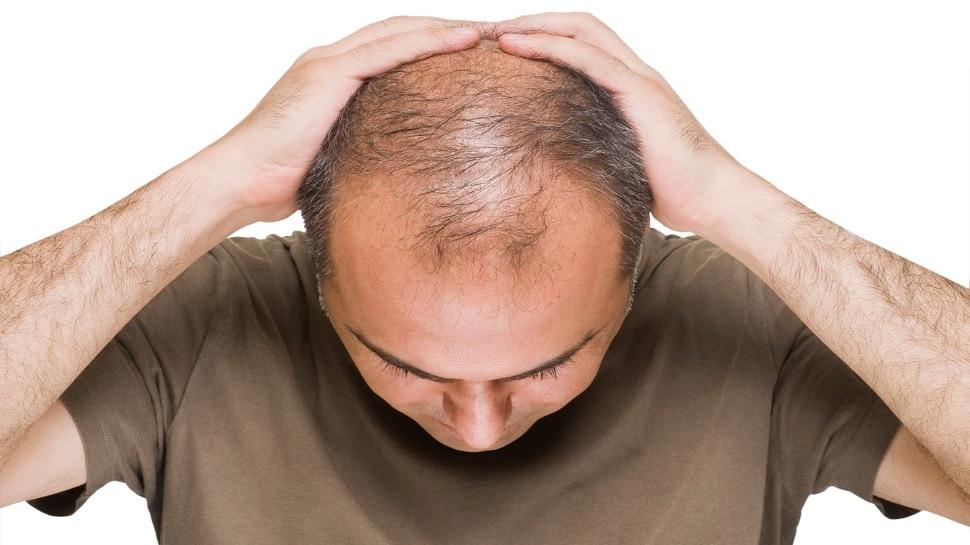 Hair Fall रोकने के लिए अपनाएं ये कमाल का तरीका, वरना गंजापन आने में देर नहीं लगेगी