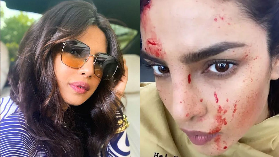 Fresh wounds seen on Priyanka Chopra's face, fans were upset seeing the situation in the photo |  Blood splattered on Priyanka Chopra's face!  Fans upset seeing the photo