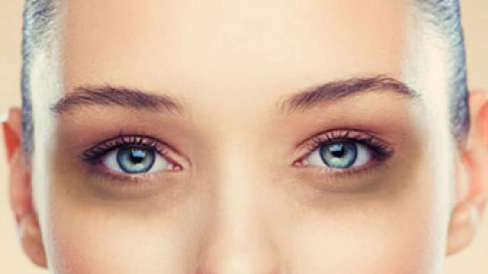 skin and face care tips how to get rid of facial wrinkles and dark under eyes how to reduce wrinkles brmp | आंखों के नीचे के डार्क सर्कल और झुर्रियां हो जाएंगी गायब, बस आजमा लीजिए ये उपाय
