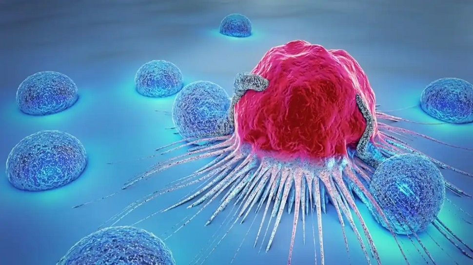 Cancer Stages: There are 5 stages of cancer, after this stage the disease becomes uncontrollable