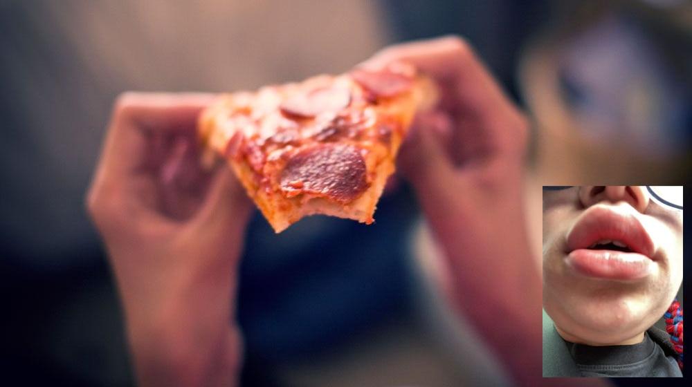 जिस Pizza से एलर्जी थी वही भेज दिया, खाते ही सूज गया महिला का चेहरा; अब गलती पर माफी मांग रही Company
