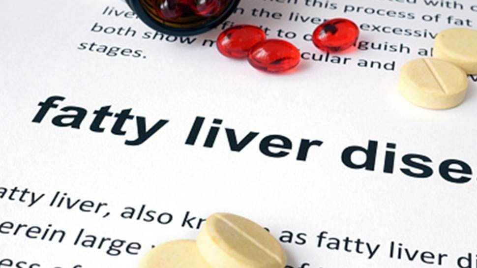 protein deficiency symptoms edema fatty liver hair fall weakend immune system