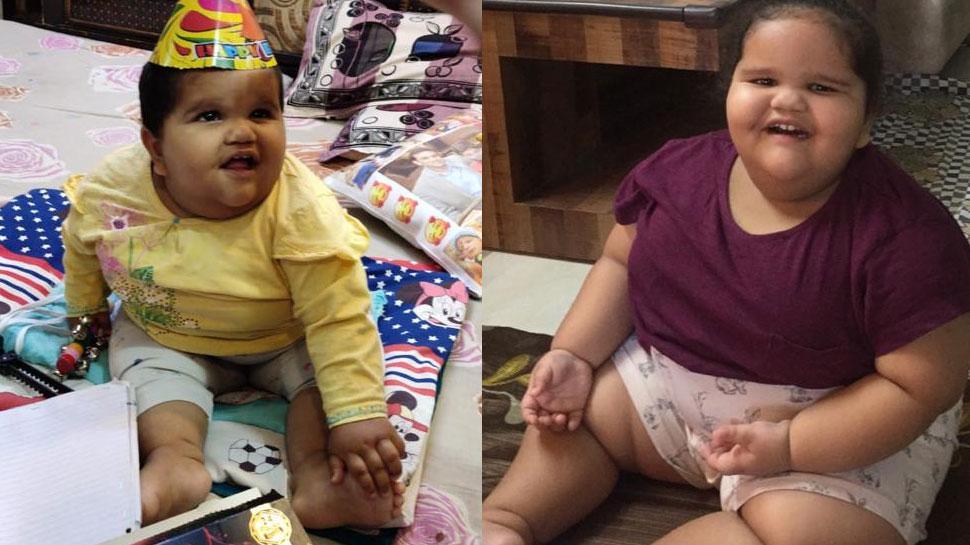 Bariatric Surgery: 2 साल की उम्र में 45 किलो वजन, जानलेवा बीमारियों का था खतरा; फिर यूं बची जान