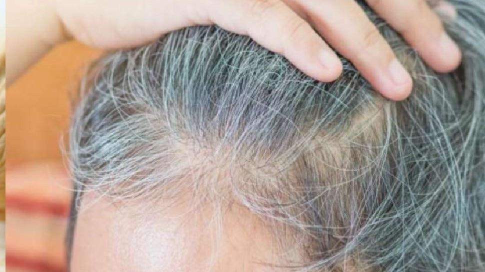 सफेद होते बालों की समस्या को जड़ से खत्म कर सकते हैं यह घरेलू उपाय, Hair दिखने लगेंगे काले और बेहद खूबसूरत