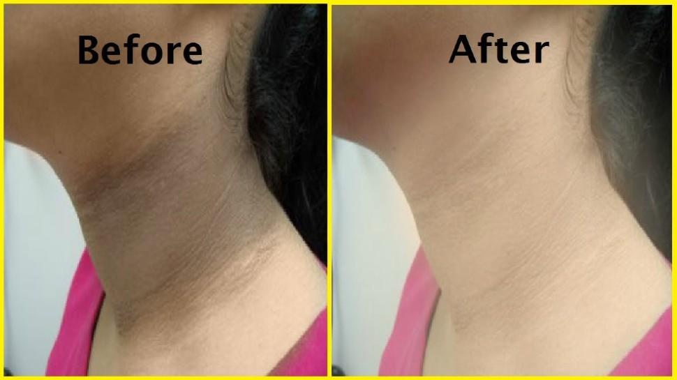 Skin Care Tips: घर बैठे गर्दन के कालेपन को आसानी से हटा देंगे यह उपाय, साफ हो जाएगी स्किन