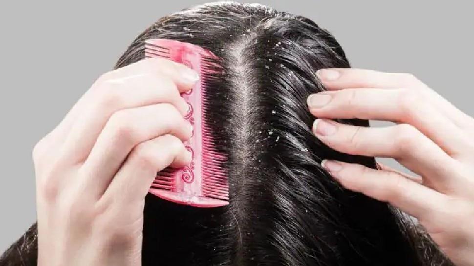 dandruff treatment: डैंड्रफ को हमेशा के लिए खत्म कर देंगे यह घरेलू उपाय, बाल दिखने लगेंगे खूबसूरत