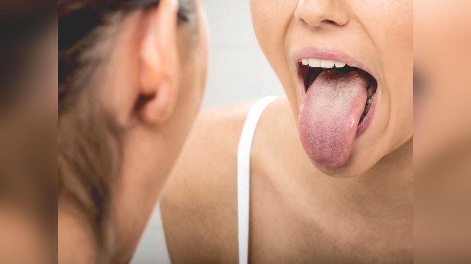 मुंह में Ulcer और इन लक्षणों को न करें नजरअंदाज, हो सकते हैं Tongue Cancer के संकेत