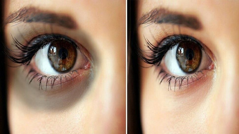 Dark circles under eyes: आंखों के नीचे काले घेरे और पिंपल्स का इलाज है आलू, बस ऐसे करना होगा इस्तेमाल
